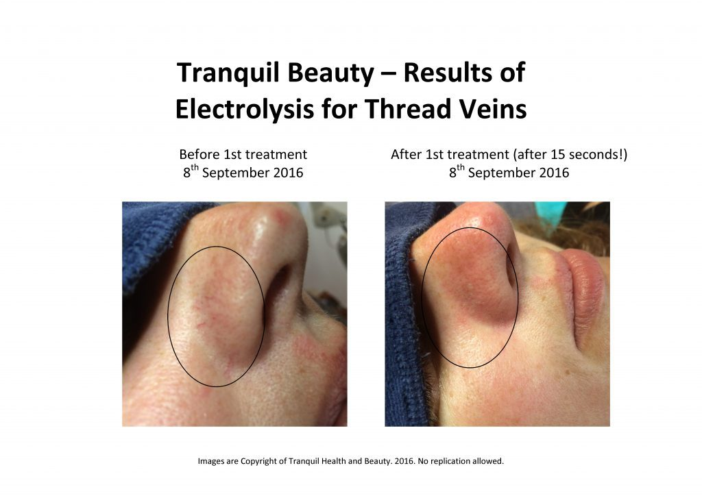 thread-veins-b4-and-after