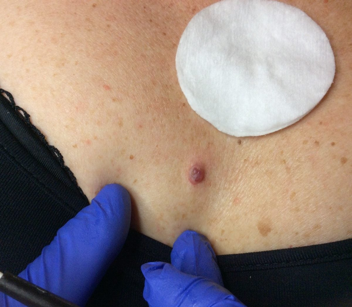 Skin Tags Thread Veins Milia And Angioma Removal Tranquil