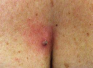 skin tage removal Stratfield Saye